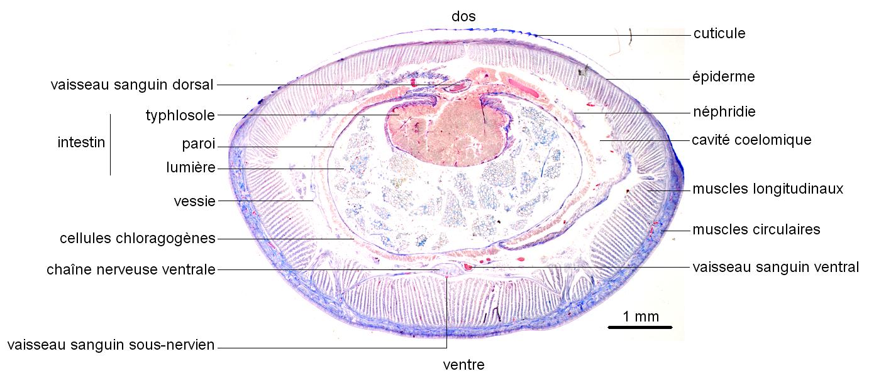Anatomie du Lombric en coupe transversale – (Collection de l'ENS de Lyon)