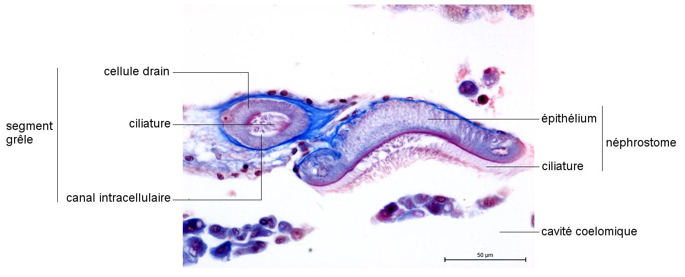 Néphrostome et segment grêle de métanéphridie de Lombric en coupe transversale (Collection de l'ENS de Lyon)